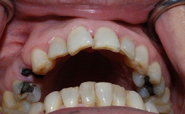 sâu răng hàm trên