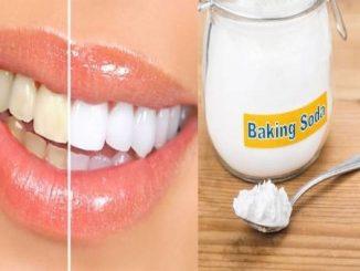 cach-lam-trang-rang-bang-baking-soda