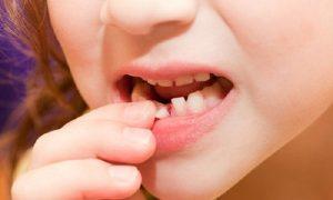Răng lung lay phải làm sao?