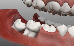 Cách trị đau răng hàm nhanh do sâu răng