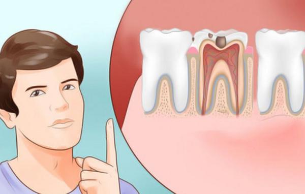 Đau răng uống thuốc gì