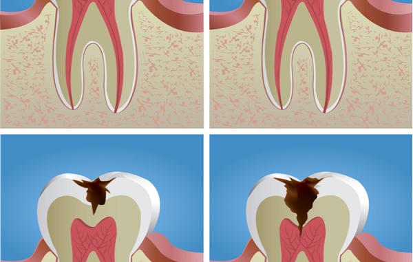 Cách giai đoạn sâu răng