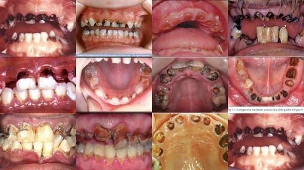 Một số hình ảnh về sâu răng